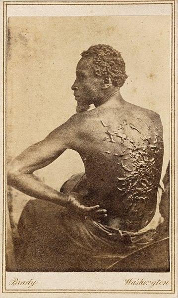 背中一面に鞭打ちの跡が残る奴隷、ゴードンの写真。1863年撮影。
