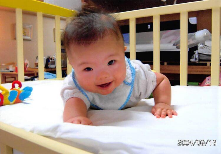 新生児 ダウン症 特徴